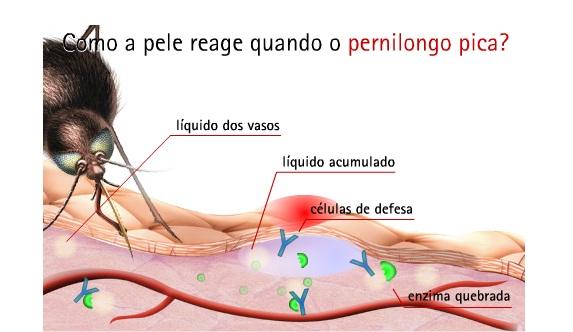 reacao-picada-pernilongo Como a pele reage à picada do pernilongo? Curiosidades