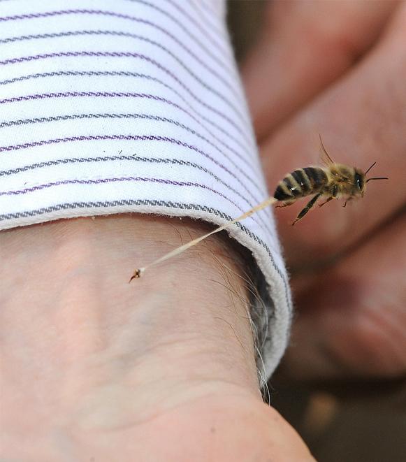Picada-de-abelha Foto impressionante da picada de uma abelha Notícias