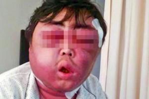 3a19-500x333-300x200 O mosquito mais brutal do mundo Perguntas ao Especialista